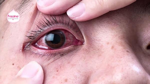 Vệ sinh bằng nước muối nhỏ mắt trong trường hợp bệnh lý