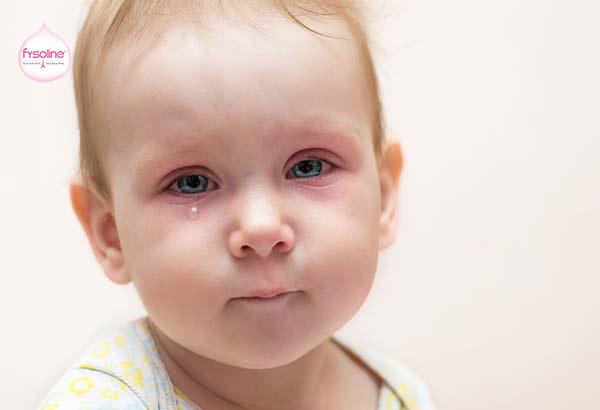 Trẻ bị hắt hơi sổ mũi do viêm xoang