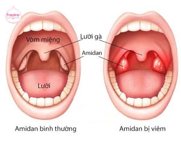 Trẻ sơ sinh bị sổ mũi do Amygdales