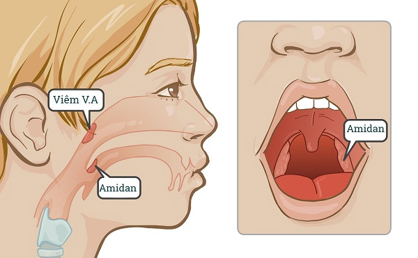 trẻ bị sổ mũi do viêm VA, Amidan
